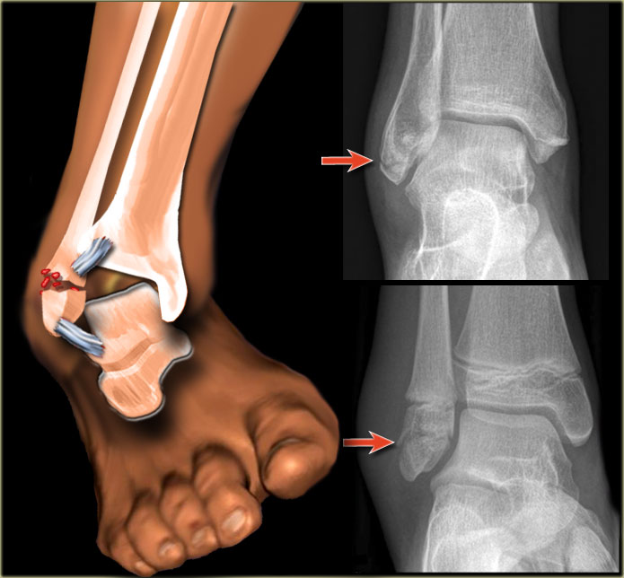 How To Treat An Ankle Fracture